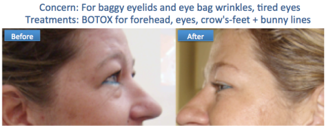Botox baggy eye bags anti wrinkle tried smooth skin radiant