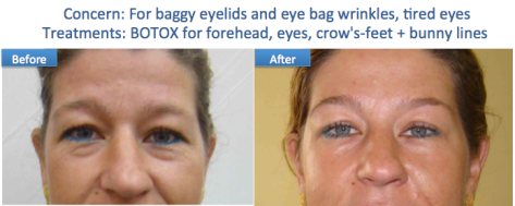 Botox eye bags brow lift anti wrinkle Dr Dulip