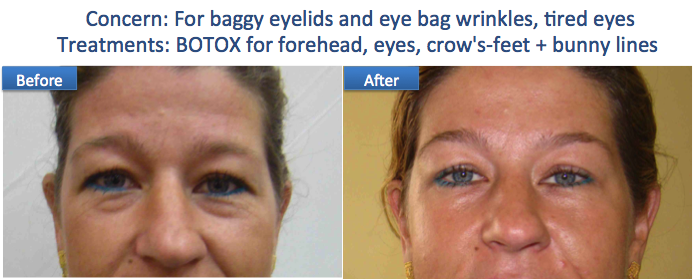 Botox eye bags brow lift anti wrinkle Dr Dulip