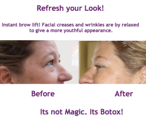 It's not Magic. It's Botox