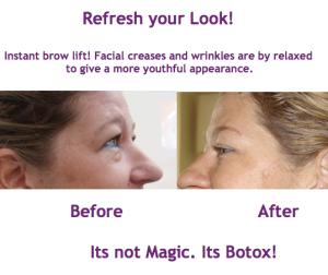 It's not Magic. It's Botox