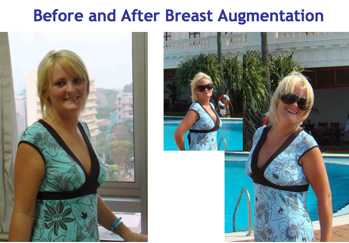 Breast Augmentation SRI LANKA