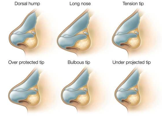 Nose Augmentation Bulbous nose reduction Long nose reduction Short nose extension Hooked nose reshaping  Nostrile reduction (alarplasty) Deviated nose correction