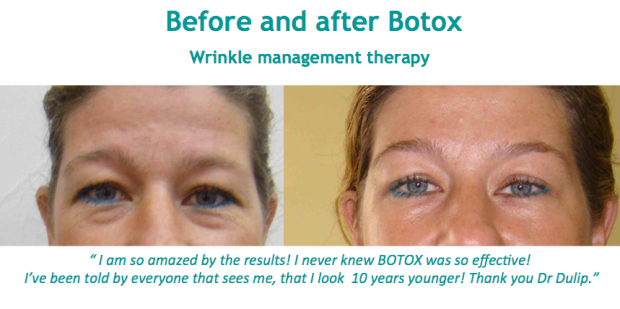 Botox sri Lanka Colombo Dr Dulip Dr Thushan
