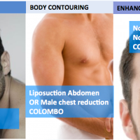 6 Male cosmetic surgeries you may never have heard of, but perhaps you might want?