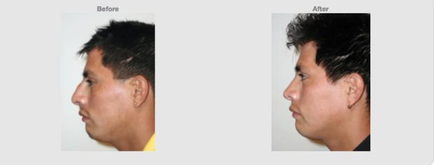 Open Rhinoplasty. Dorsal Hump reduction. 24 years old. Male. Side Profile. Cosmetic clinic Colombo. Sri Lanka. Source www1.plasticsurgery.org