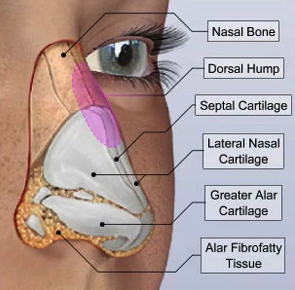 nose surgery plastic surgery sri lanka
