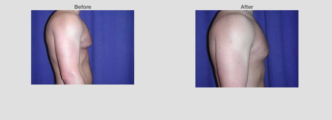 Liposuction Chest. 22 years old. Male. Side profile.Source: www1.plasticsurgery.org