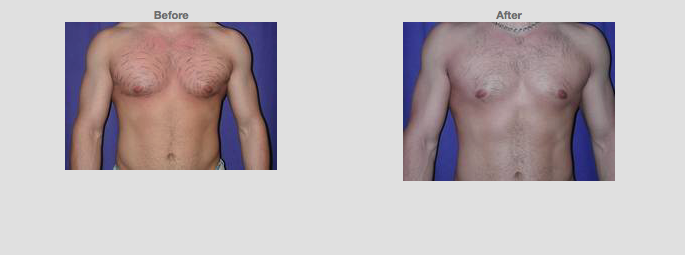 Liposuction Chest. 22 years old. Male. Source: www1.plasticsurgery.org