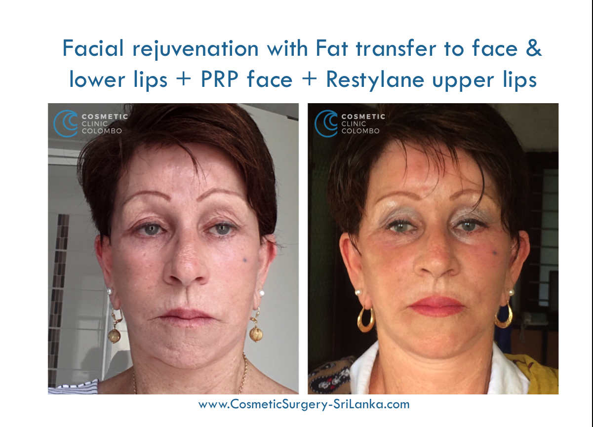 fat graft to face and lips dermal lip filler PRP Cosmetic Surgery Sri Lanka