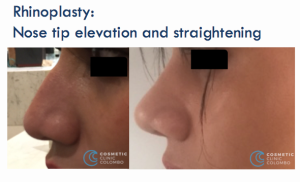 Nose surgery tip elevation and straightening Dr Dulip Sri Lanka