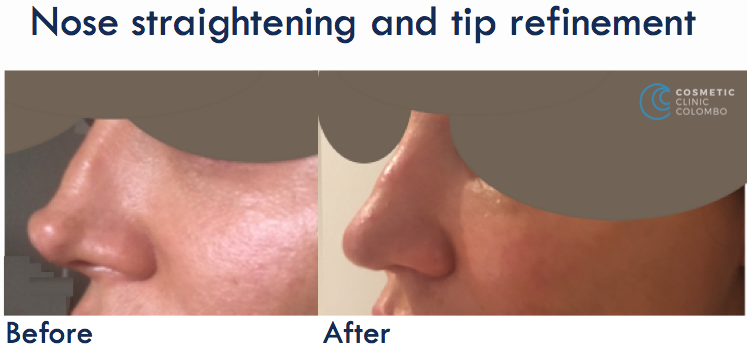 Nose Straightening and-tip refinement - Open Rhinoplasty