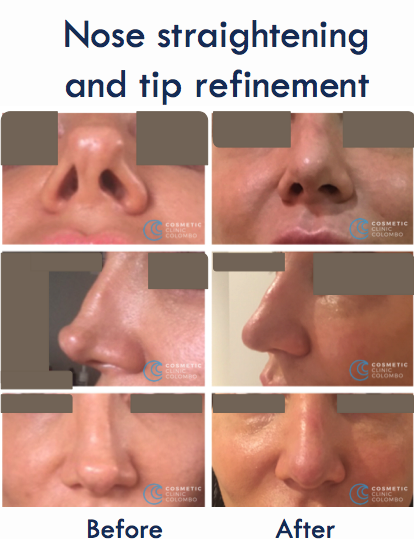 Nose Straightening and Tip Refinement Sri Lanka