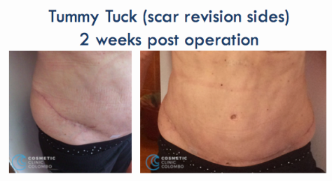 Tummy Tuck Scar liposuction