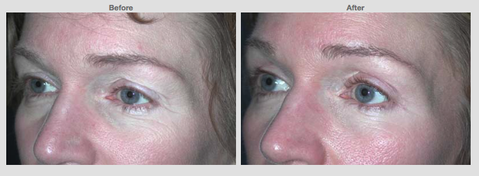 48 years old Female Upper lids only Cosmetic Clinic Colombo, Sri Lanka