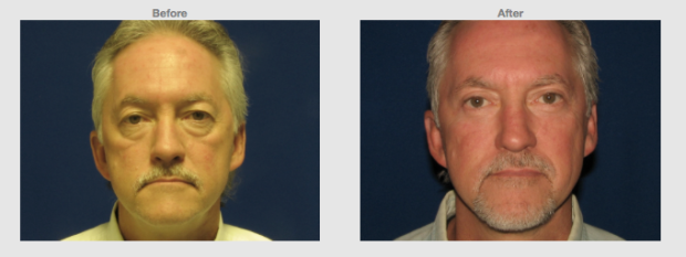 53 year old Male Upper lower eye lids with cheek lift Cosmetic Clinic Colombo, Sri Lanka.