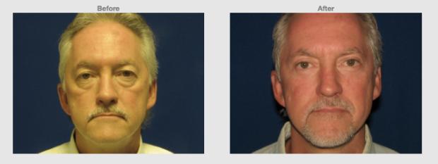 53 year old Male Upper lower eye lids with cheek lift Cosmetic Clinic Colombo, Sri Lanka.