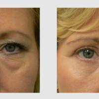 Eye lid lift or eye bag removal