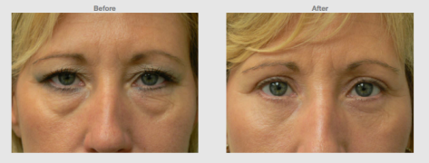 Upper and lower bleph front female Cosmetic Clinic Colombo, Sri Lanka