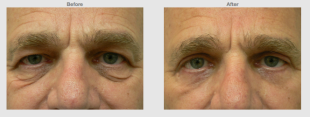 Upper lower eyelids (Eye bags) blephorplasty for men Cosmetic Clinic Colombo, Sri Lanka