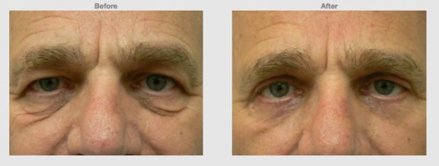 Upper lower eyelids (Eye bags) blephorplasty for men Cosmetic Clinic Colombo, Sri Lanka