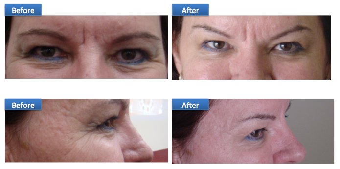 BOTOX anti aging wrinkles and creases forehead eyes fine lines Sri Lanka Dr Dulip Dr THushan Colombo