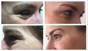 BOTOX for Crows feet, eye bags and hooded eyes and brow lift. Dr Dulip. Dr Thushan