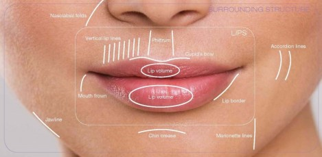 Lip reshaping