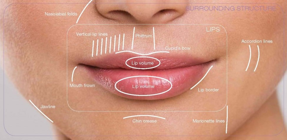 Lip enhancement for thin lips Malaysia sri Lanka