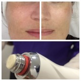 Radiant silky smooth skin with a Microdermabrasion facial. Colombo, Sri Lanka Professional medical grade skin care.