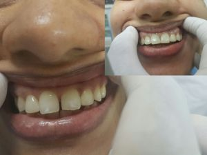 Dental Veneers Colombo Sri Lanka