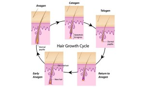 hair Loss thinning hair SRI LANKA Colombo