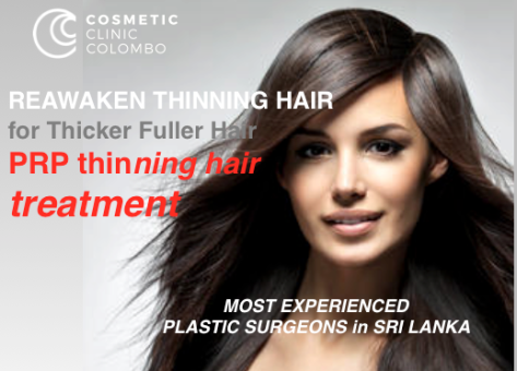 Platelet Rich Plasma PRP Hair Loss Thinning Sri Lanka COlombo