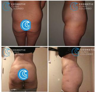 Brazilian Butt Lift Surgery Sri Lanka buttocks Cosmetic surgery