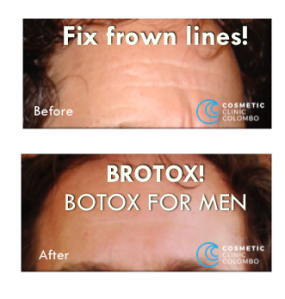 Fix Frown lines with tiny injections of BOTOX BRO!