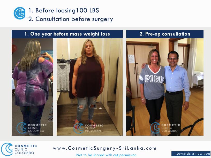 Before Mass Weight Loss 1 year before Cosmetic Surgery Sri LANKA