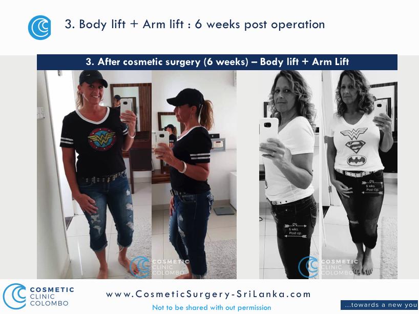 Body Lift and Arm Lift Sri Lanka Post Cosmetic Surgery
