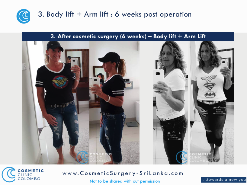 Body Lift and Arm Lift Sri Lanka Post Cosmetic Surgery