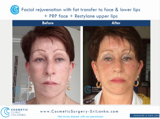Fat Transfer or fat graft to face and lips dermal lip filler PRP Cosmetic Surgery Sri Lanka