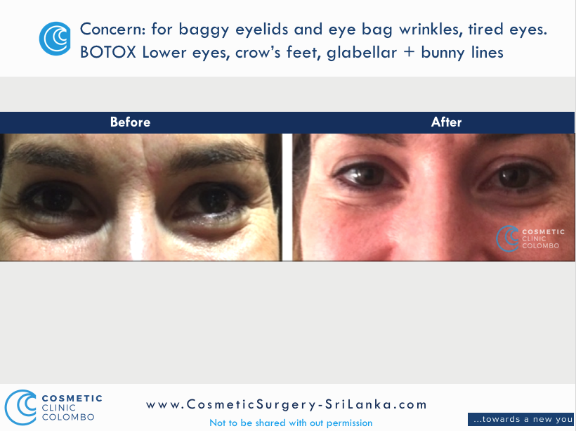 40 years old, female. BOTOX for Crows feet, eye bags and hooded eyes and brow lift. Dr Dulip. Dr Thushan Sri Lanka