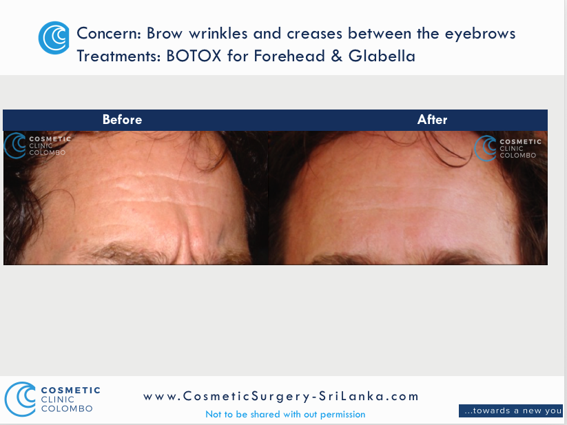 BOTOX for Crows feet, eye bags and hooded eyes and brow lift. Dr Dulip. Dr Thushan Sri Lanka