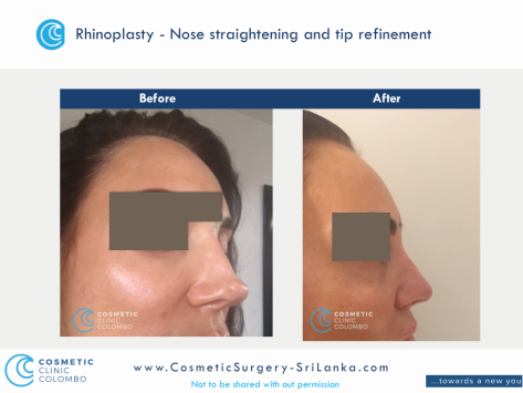Nose straightening and tip refinement Rhinoplasty Sri Lanka