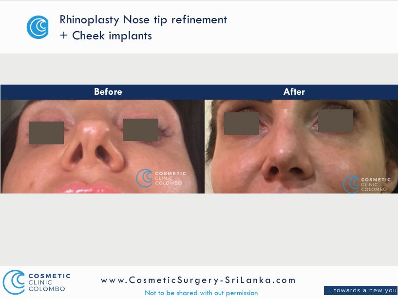 Nose straightening and tip refinement Rhinoplasty Sri Lanka