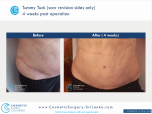 Tummy Tuck Scar Revision to remove uneven ends of the original scar from a previous surgery and additional body contouring with Liposuction waist