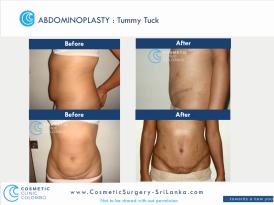 Tummy Tuck Sri Lanka Flat Tummy Apron loose skin