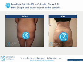 Brazilian Butt Lift Surgery BBL - Beautiful C shape buttocks - Cosmetic Surgery Sri Lanka