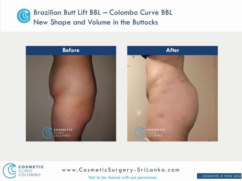 Brazilian Butt Lift Surgery BBL - Beautiful C shape buttocks - Cosmetic Surgery Sri Lanka