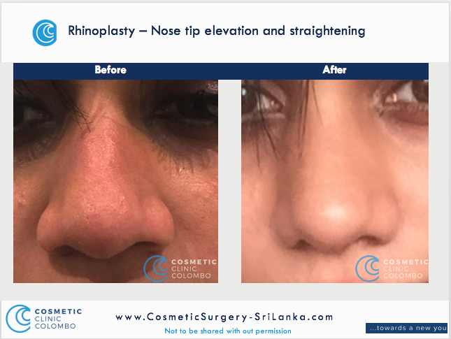 Nose surgery Sri Lanka