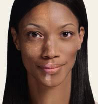 Vitiligo Treatments
