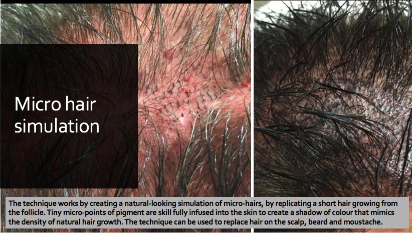 Hair stroke tattooing Mirco Hair simulation